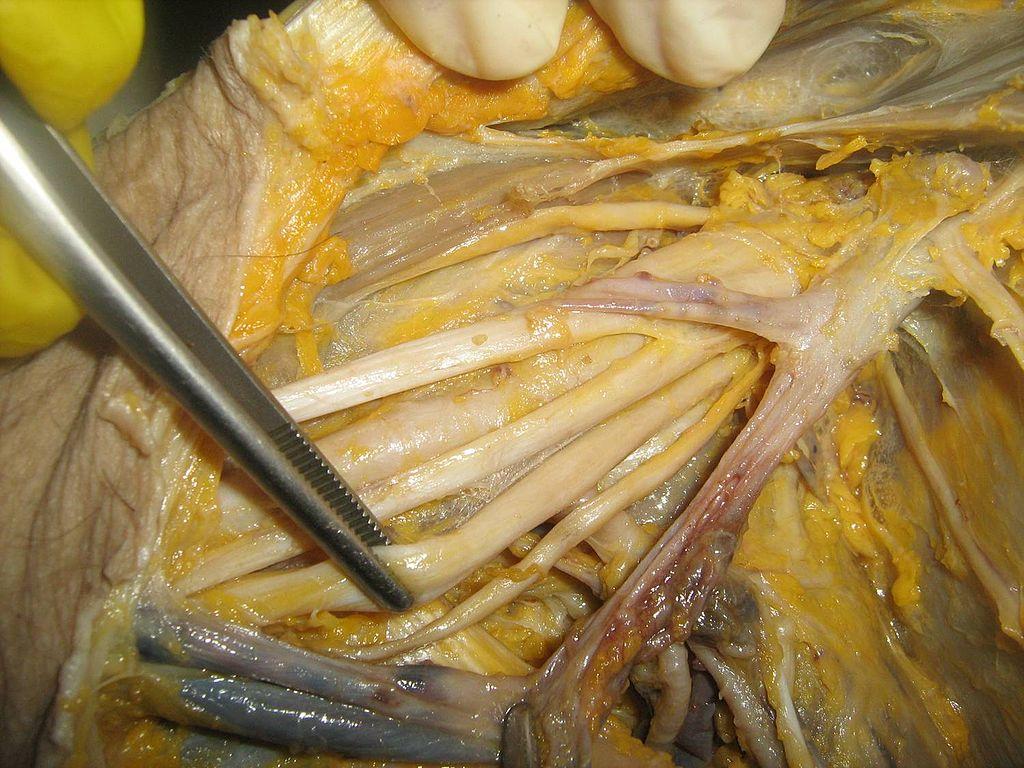 Invitación a Curso Anatomía y Sonoanatomía aplicado a la Anestesia ...